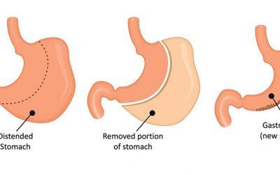 Sleeve Gastrectomy Surgery