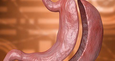 tüp mide ameliyatı komplikasyonları