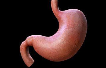 2. kez tüp mide ameliyatı olunur mu