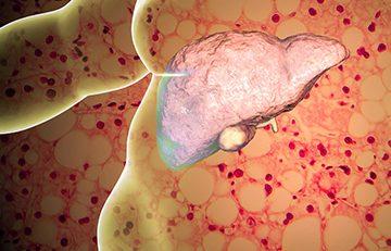 Tüp Mide Ameliyatı ve Karaciğer Yağlanması