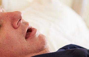 uyku apnesi ve obezite cerrahisi